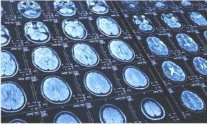 Phát hiện sớm chứng tự kỷ ở trẻ nhờ phương pháp chụp cắt lớp não